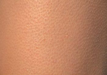 Dermatologue, le spécialiste de la peau, des ongles, du cuir chevelu…